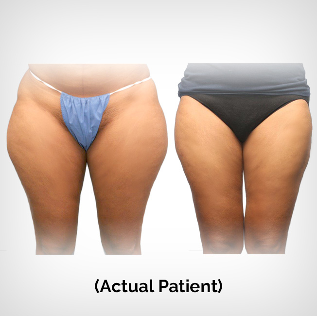 Thigh Liposuction Patient Before and After Images